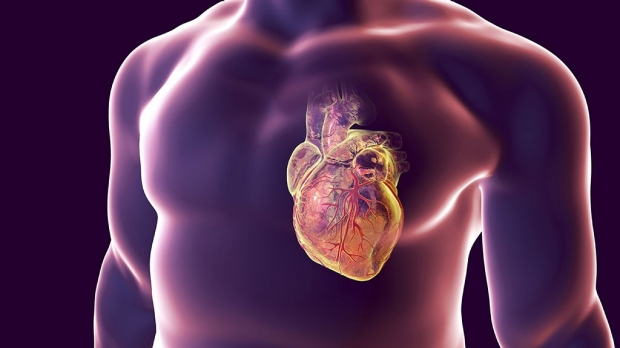 Heart defects boost heart disease risk