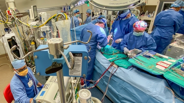 Stanford marks 1,000th heart-lung and lung transplant