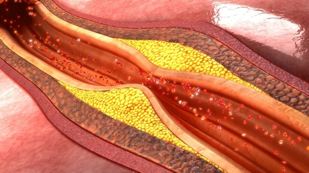 Illustration of atherosclerosis