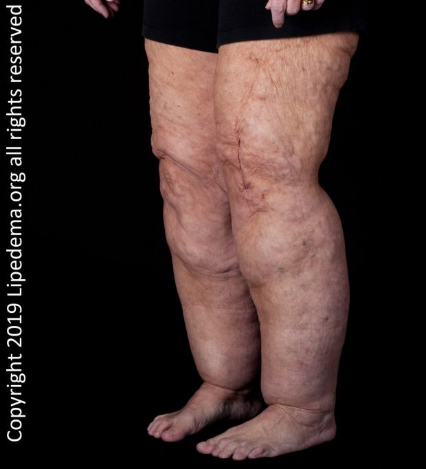 legs of woman with lipedema