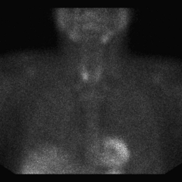 Sestamibi parathyroid scan (right) showing a bright signal in the right side of the neck at the site of a parathyroid adenoma.