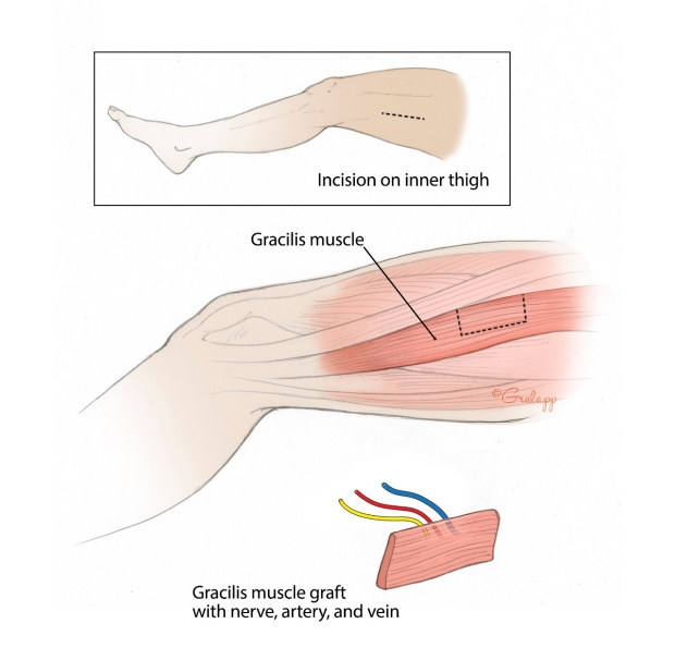 Surgical incisions and illustrated anatomy of the Gracilis free muscle transfer