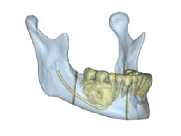 Jaw Reconstruction Illustration