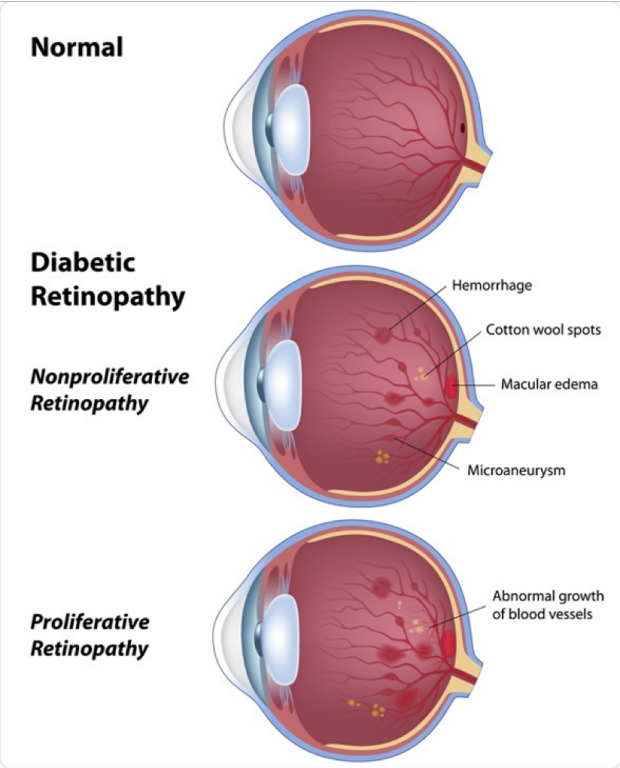 Diabetic retinopathy comparison graphic of normal retina vs DR