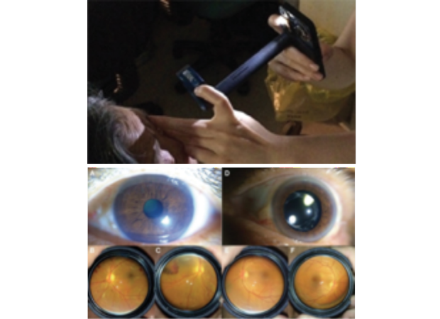 smartphone used on patient eyes