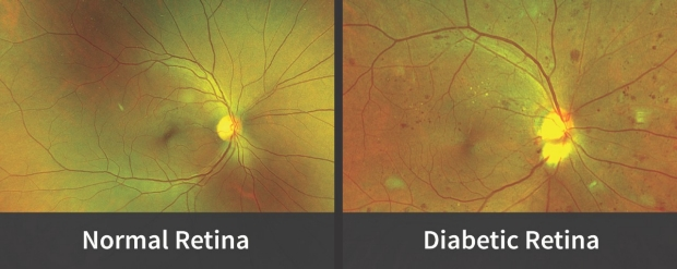 Normal retina v. diabetic retina images