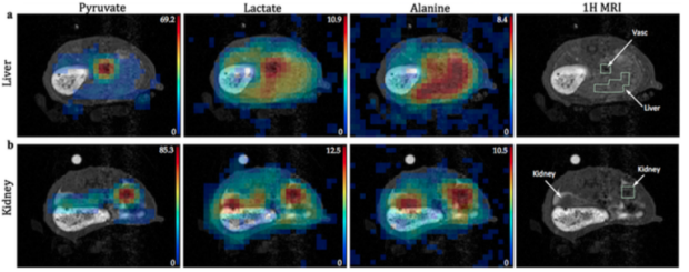 Metabolic imaging of liver inflammation