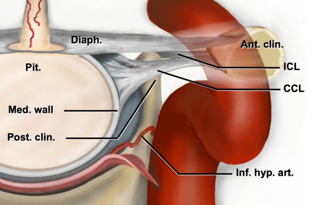 an illustration of the selective resection