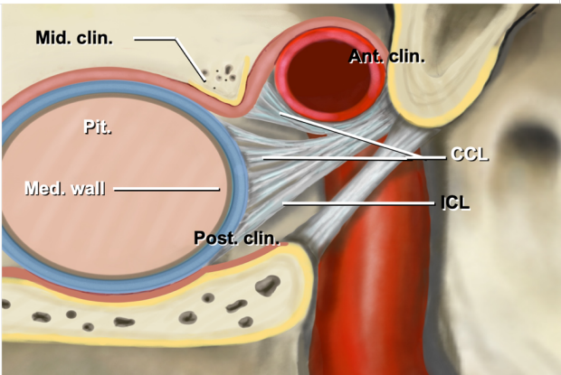 an illustration of selective resection