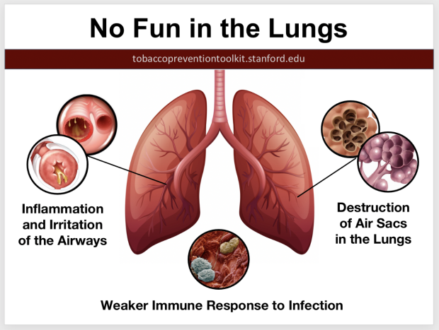 no-fun-in-lungs