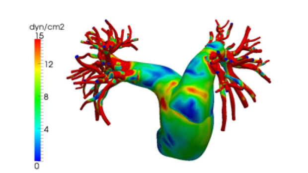 bioengineering model of pulmonary artery